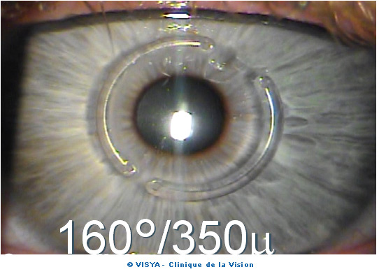 opération refractive des yeux