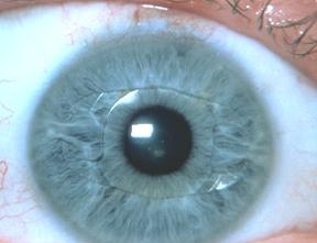 Lentilles intraoculaires   Clinique de la Vision - lasik - laser 483c3dd8d567