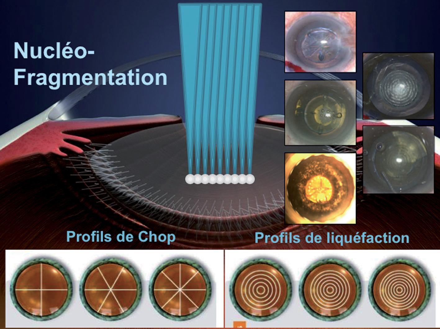 Nucléo-Fragmentation