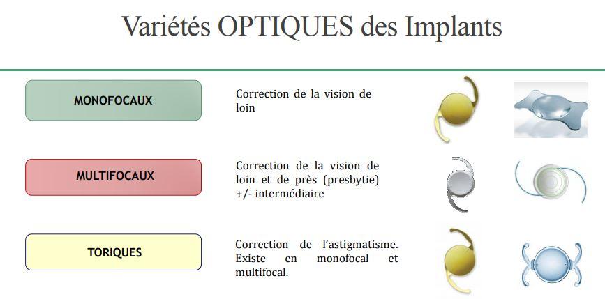 L asphéricité peut être neutre ou négative pour compenser plus ou moins  complètement l asphéricité positive préopératoire de la cornée (de – 0.27 à  -0.11 μ) ... 5d4beaab4c08
