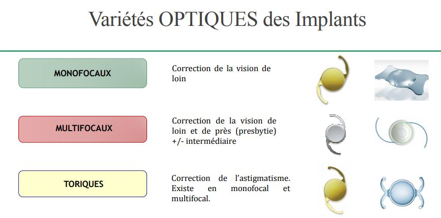 Cataracte Myopie Residuelle L Opration De La Cataracte