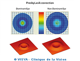 PresbyLasik correction