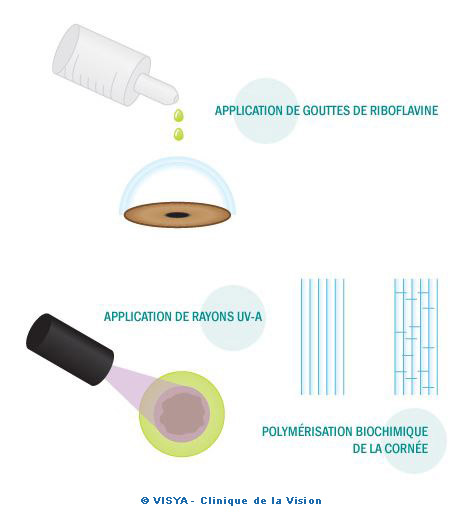 Application de gouttes de Riboflavine