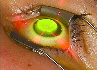 Herpès oculaire