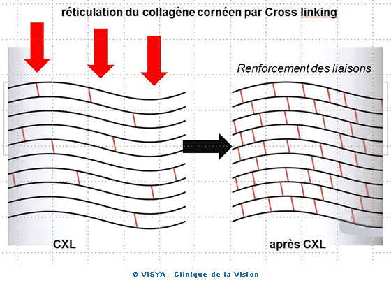 Réticulation du collagène cornéen par Cross linking
