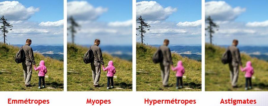 miopie 5)