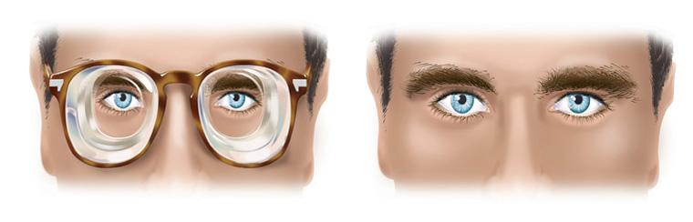 Ce sont les lentilles intraoculaires placées à l intérieur du globe par  voie chirurgicale et en ambulatoire pour la correction des fortes myopies  et ... 6db67532befe