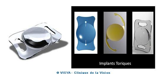 Implants toriques