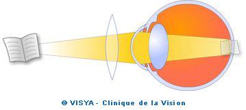 La presbytie correspond à la perte de l accommodation qui est l ajustement,  entre la vision de loin et la vision de près, permis par les muscles ... af063b1319d6
