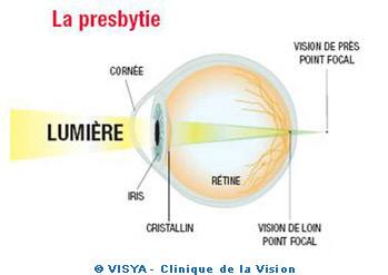 La presbytie est le premier défaut visuel dans le monde. C est une  particularité des pays les plus aisés où la durée de vie est longue. 5866849401e7